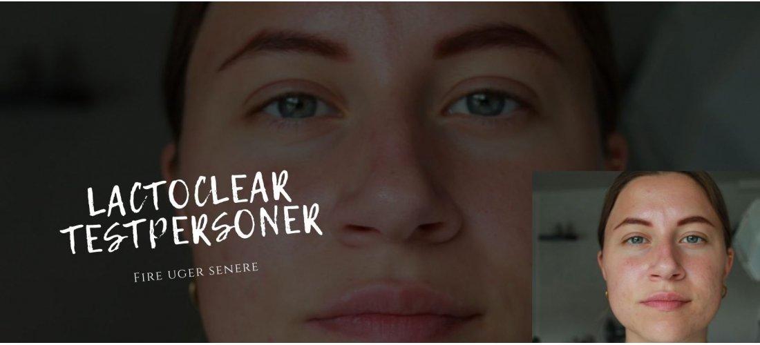 Test af LACTOClear til uren hud: Fire uger inde i forløbet