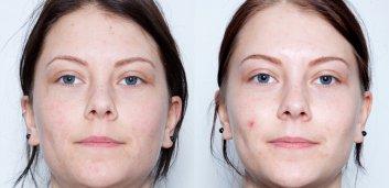 LACTOClear-historie: Hudplejeprodukter mod akne har gjort min hud knastør